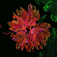 An entire Drosophila ovary. Image by Denise Montell, Johns Hopkins School of Medicine.