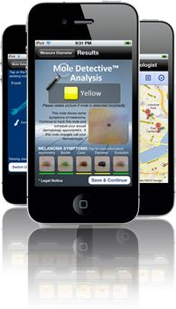 Mole Detective™ an app that calculates the symptoms of melanoma on your phone.