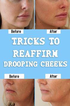 TRICKS TO REAFFIRM DROOPING CHEEKS #beauty #cheeks #health #hair #skin #skincare #remedy #diy #beauty