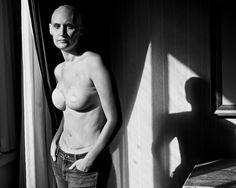 The SCAR Project - David Jay Photography  borstkanker  www.noadin.nl