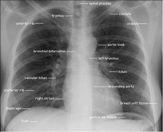 Radiographic landmarks PA