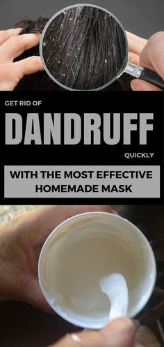 Get rid of dandruff quickly with the most effective homemade mask.