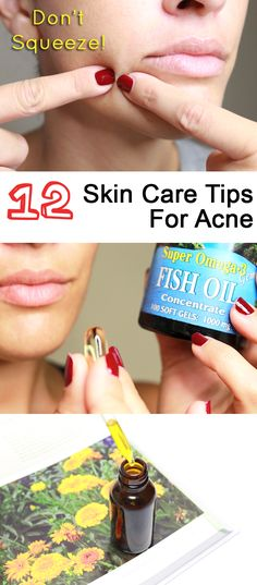 Never squeeze a pimple! These 12 tips are sure to help any skin type that is dealing with annoying acne. http://www.ehow.com/ehow-style/blog/12-skin-care-tips-for-acne-prone-skin-types/?utm_source=pinterest.com&utm_medium=referral&utm_content=blog&utm_campaign=fanpage