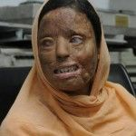 Acid Attack Survivors - Multiple Stories THIS IS ISLAM. THIS IS SHARIA LAW.