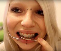 #braces #braceface #metalbraces #girlswithbraces #headgear