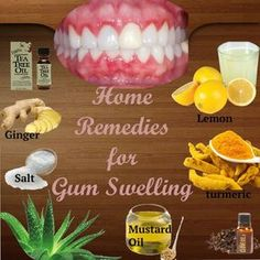 Effective home remedies for gum swelling. How to reduce gum swelling? Clove oil for gum swelling. Top 10 natural ways for gum pain and swelling. Gum Disease Treatment, Swollen Gums Remedy, Home Remedies, Natural Remedies, Homeopathic Remedies, Health