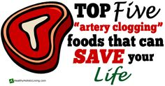 Top 5 Artery-Clogging Foods That Can Save Your Life - Healthy Holistic Living