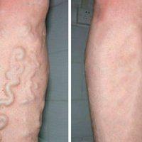 Insuficiență venoasă simptome picioare