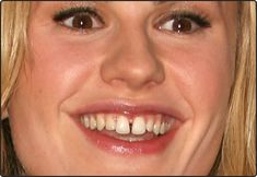 Celebs With the Worst Teeth Ever