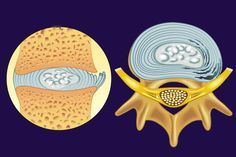 Are your discs the source of your low back pain?: Annular tear and irritated spinal nerve root