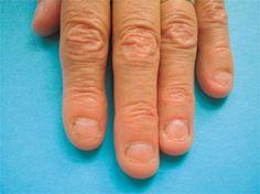 Nail Disorder Onychophagy Biting Disorders Mental Conditions