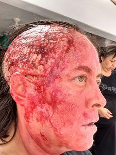 Efectos especiales en gel, herida de quemadura de tercer grado.