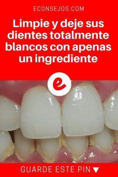 Blanquear dentes   Limpie y deje sus dientes totalmente blancos con apenas un ingrediente   Este blanqueamiento dental casero funciona de verdad. Es super simple y barato. Con sólo 1 ingrediente, usted dejará sus dientes blancos. Aprenda, pruebe y compruebe ↓ ↓ ↓