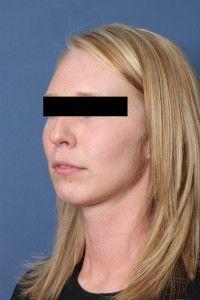 Before Rhinoplasty Surgery, Plastic Surgery, Houston