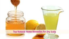 Top Natural Home Remedies for Dry Scalp - #hair #hairtreatments #haircare - @Hair Treatments Talk