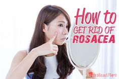 Here are the some very useful home remedies to get rid of rosacea naturally. So if your rosacea gotten worse and bothers you then you should control this si