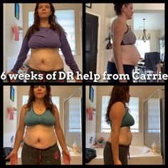 Maggie worked with CarrieFit for 6 weeks to recover half of her Diastasis Recti Brand Building, Team Building, Postpartum Belly, Diastasis Recti, Success, Weight Loss, Fitness, Keep Fit, Loosing Weight