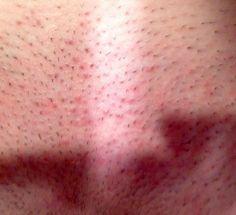 Razor rash or herpes