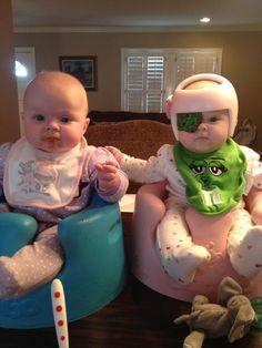 The Story Behind My Child's Eye Patch   Katy C. at Alamo City Moms Blog