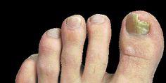 Hongos en los pies por humedad y malos hábitos de higiene