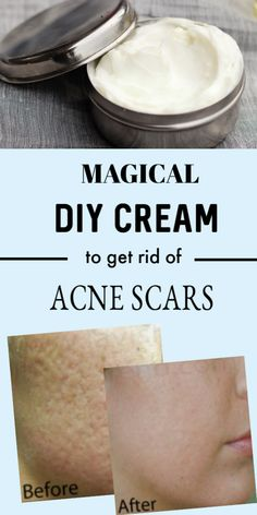 <img> Use This Cream 2 Times In A Day And It Will Make Your Scars Disappear Source by glowpinkbeautytips - Blind Pimple, Banana Face Mask, Dark Lips, How To Get Rid Of Acne, Natural Beauty Tips, Face Skin Care, Lavender Oil, Acne Scars, Cocoa Butter