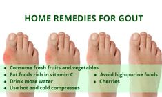Every year, millions of men and women are affected by arthritis. It is extremely painful to have arthritis; however, there are many successful ways you can manage the pain. Home Remedies For Gout, Gout Remedies, Natural Remedies, Arthritis, Essential Oils For Gout, Gout Flare Up, Uric Acid Gout, Gout Prevention, Health