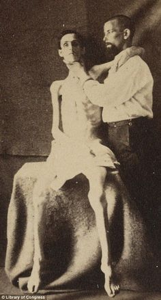 American Civil War -                                                              Shocking photographs of survivors starved into living skeletons reveal the terrible treatment at POW camps.