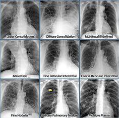 Resultado de imagen para chest xray pneumonia