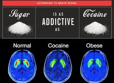 Sugar is As Addictive As CocainePositiveMed | Stay Healthy. Live Happy
