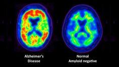 Το νέο διαγνωστικό τεστ για τη νόσο Alzheimer