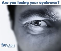 The Kaloni procedure is a great solution to correct and improve the appearance of your eyebrows. We make sure the results are both excellent and natural-looking. Kaloni hair restoration has what you need.   Call now for a free consultation: 855 KALONI9 or visit our website: http://kaloni.us/service/