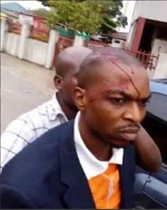 Head Teacher Stabs Colleague In The Head