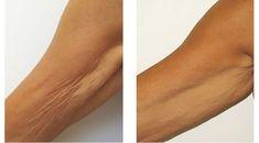 Ztracená elasticita, zvrásněnou kůže na pažích, krku, břiše a stehnech – je běžným fenoménem u žen po 45 letech.Dieta, velká ztráta váhy, hormonální poruchy – to vše ovlivňuje stav kůže, protože s věkem se buňky již nedokáží zotavit stejně rychle jako dříve. Existuje však lék, který je pod podmínkou pravidelné aplikace schopný stáhnout kůži a […] The post Trápí Vás visící kůže? Už nemusí! Postačí Vám k tomu tento jednoduchý přírodní přípravek! appeared first on Příroda je Home Remedies For Acne, Acne Remedies, Natural Remedies, Cystic Acne On Chin, Blackhead Extraction, Sagging Skin, Tips Belleza, Healthy Mind, Our Body