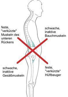 Wie entsteht ein Hohlkreuz? Charakteristisch ist die im Bild zu sehende muskuläre Dysbalance. Erfahre im Artikel, wie du sie korrigieren kannst.