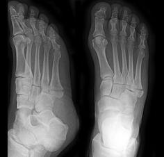 Jones fracture   Radiology Case   Radiopaedia.org