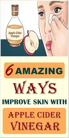 How apple cider vinegar benefits your beauty? Well, Apple Cider Vinegar benefits for hair growth are immense as it is used in most of the beauty products. Apple Cider Vinger, Apple Cider Vinegar Remedies, Apple Cider Vinegar For Skin, Apple Cider Vinegar Benefits, Apple Cider Face, Skin Care Remedies, Home Remedies, Natural Remedies, Homeopathic Remedies