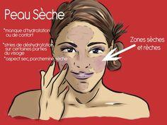 6 astuces contre la peau sèche !