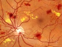 Diabetic Retinopathy (cause, diagnosis and treatment) from American Optometric Association  www.aoa.org/x4712.xml)