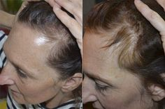 How to Stop Hair Loss and Regenerate New Hair With Essential Oils