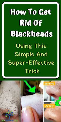 Use This Simple And Super-Effective Trick And Get Rid Of Blackheads! Use This Simple And Super-Effective Trick And Get Rid Of Blackheads! – My Natural Tips Herbal Remedies, Home Remedies, Natural Remedies, Health Remedies, Holistic Remedies, Healthy Tips, Healthy Skin, Healthy Food, Healthy Drinks