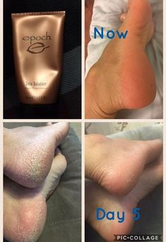 EPOCH® SOLE SOLUTION® FOOT TREATMENT Features crushed allspice berry—traditionally used by the indigenous people of Central America to relieve persistent dry, cracked, red skin on heels, toes, and sides of feet. Nu Skin, Skin Treatments, Anti Aging Skin Care, Natural Skin Care, Natural Beauty, Skin Care Regimen, Skin Care Tips, Epoch Sole Solution, Hair And Beauty