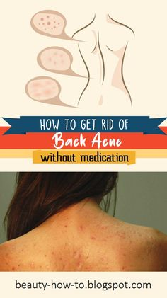 How to get rid of back acne without medication - How To Beauty Chin Hair, Get Rid Of Blackheads, Unwanted Hair, Tea Tree Oil, Natural Treatments, How To Get Rid, Cellulite, Washing Clothes, Whitening