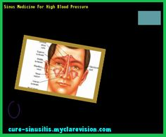 Sinus Medicine For High Blood Pressure 105340 - Cure Sinusitis