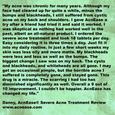 A review from Danny, who saw a wonderful, lasting improvement in his acne after taking AcnEase.