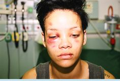 "Every Time Chris Brown Starts Whining ""Woe Is Me,"" Take A Look At This Photo Of Rihanna 