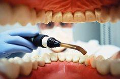 Científicos revelan una causa inesperada que provoca dolor de dientes
