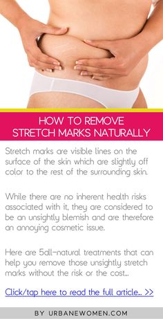 How to remove stretch marks naturally - Click to read the full article: