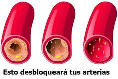 Limpia tus arterias coronarias rápidamente con estos 3 ingredientes.