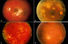 Causes of infectious retinitis, including cytomegalovirus (A), varicella-zoster virus (B), herpes simplex virus (C), and toxoplasmosis (D)