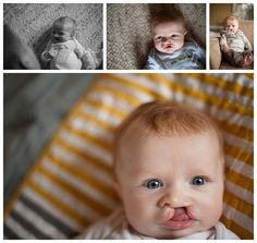 Newborn cleft lip and cleft palate journey by Megan Decker Photography